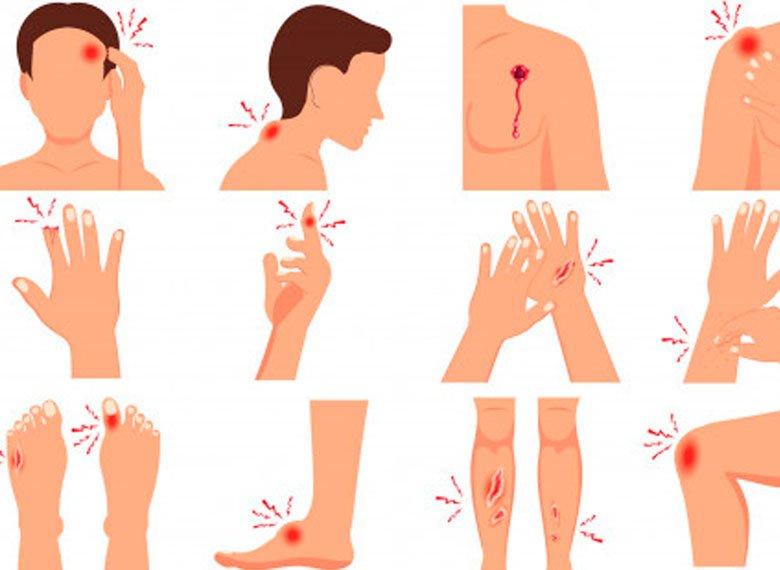 Curso Prevención Heridas